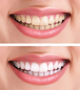 comparison of stained teeth and whitened teeth