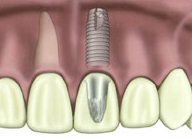 diagram of a dental implant by Lexington dentist Dr. Jenny Miller