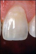 example of repair with tooth bonding