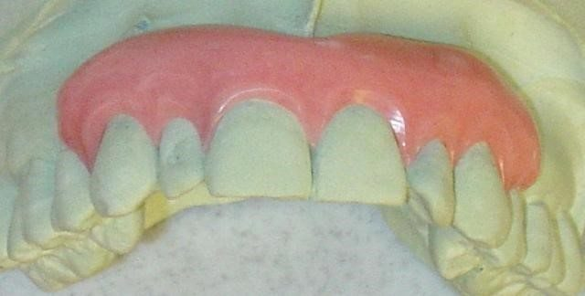 image of a gingival mask to help with black triangles