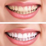 before after teeth whitening1