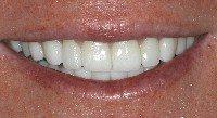 close-up of a porcelain veneers patient