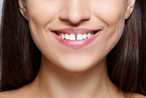 image of a woman with a gap in her front teeth
