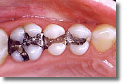 photo of amalgam, silver fillings