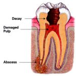 Copy of root canal abscess