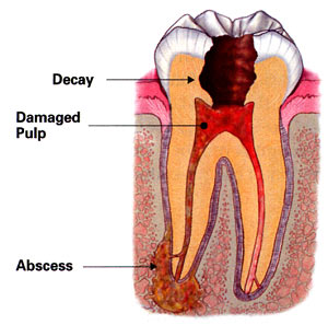 diagram of a tooth where a root canal has formed