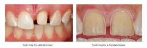 comparision of prep for crowns and prep for poreclain veneers